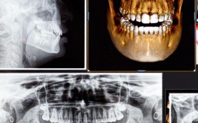 Radiologia 3D
